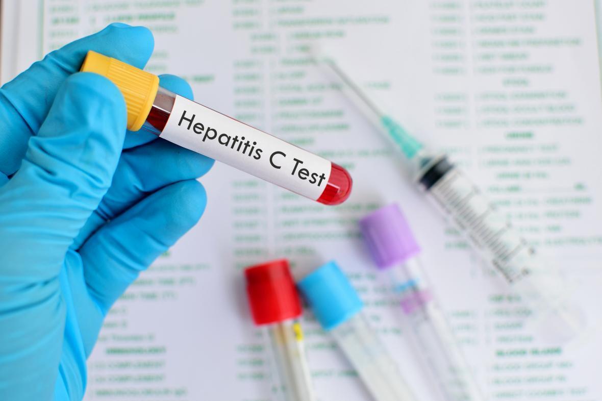 درمان 10 درصد از مبتلایان به هپاتیت سی در مشهد