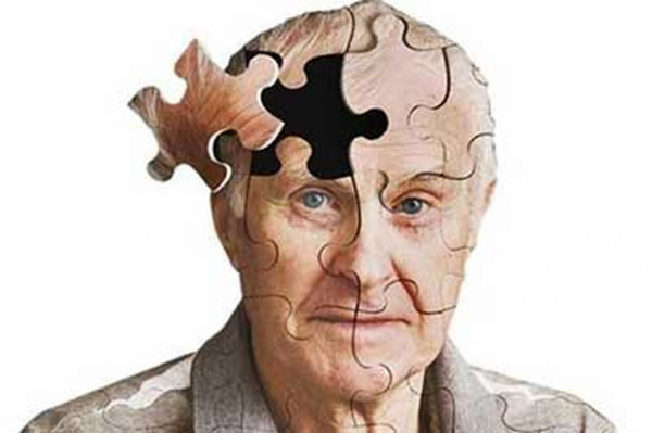9 راه حل ساده برای پیشگیری از ابتلا به آلزایمر