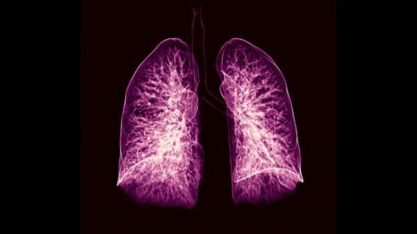 تشخیص یک سال زودتر سرطان ریه با هوش مصنوعی