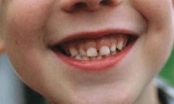کودک و دندان شیری